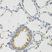 PON2 Antibody - Immunohistochemistry of paraffin-embedded rat lung using PON2 Antibody at dilution of 1:100 (40x lens).