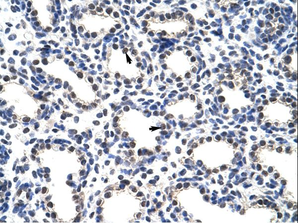 POP4 Antibody - POP4 antibody ARP40674_T100-NP_006618-POP4 (processing of precursor 4, ribonuclease P/MRP subunit (S. cerevisiae)) Antibody was used in IHC to stain formalin-fixed, paraffin-embedded human lung.  This image was taken for the unconjugated form of this product. Other forms have not been tested.