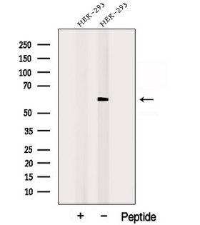 POPDC3 Antibody - Western blot analysis of extracts of HEK293 cells using POPDC3 antibody. The lane on the left was treated with blocking peptide.