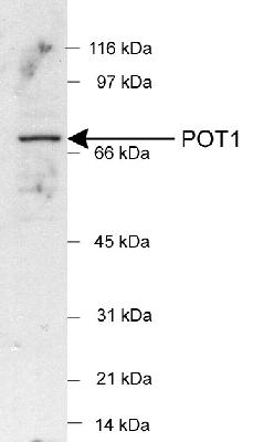 Detection of POT1 in HeLa nuclear extracts (25 ug) using LS-C2849 (1:500). ECL detection 1 min.  This image was taken for the unconjugated form of this product. Other forms have not been tested.
