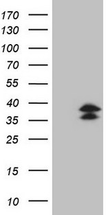 POU2AF1 / BOB1 Antibody - HEK293T cells were transfected with the pCMV6-ENTRY control. (Left lane) or pCMV6-ENTRY POU2AF1. (Right lane) cDNA for 48 hrs and lysed