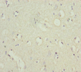 Immunohistochemistry of paraffin-embedded human brain tissue at dilution 1:100