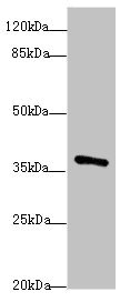 Western blot All Lanes: POU4F3antibody at 1.97ug/ml+ Mouse brain tissue Goat polyclonal to rabbit at 1/10000 dilution Predicted band size: 37 kDa Observed band size: 37 kDa