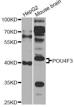 Western blot analysis of extracts of various cell lines, using POU4F3 antibody at 1:1000 dilution. The secondary antibody used was an HRP Goat Anti-Rabbit IgG (H+L) at 1:10000 dilution. Lysates were loaded 25ug per lane and 3% nonfat dry milk in TBST was used for blocking. An ECL Kit was used for detection and the exposure time was 30s.
