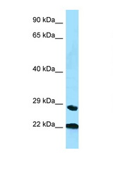 PPIC antibody Western blot of Small Intestine lysate. Antibody concentration 1 ug/ml.  This image was taken for the unconjugated form of this product. Other forms have not been tested.