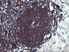 PPIL3 Antibody - IHC of paraffin-embedded Human tonsil using anti-PPIL3 mouse monoclonal antibody.