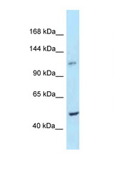PPIP5K2 / HISPPD1 antibody Western blot of Mouse Thymus lysate. Antibody concentration 1 ug/ml.  This image was taken for the unconjugated form of this product. Other forms have not been tested.