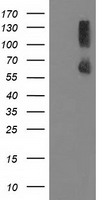 PPM1G Antibody - HEK293T cells were transfected with the pCMV6-ENTRY control (Left lane) or pCMV6-ENTRY PPM1G (Right lane) cDNA for 48 hrs and lysed. Equivalent amounts of cell lysates (5 ug per lane) were separated by SDS-PAGE and immunoblotted with anti-PPM1G.