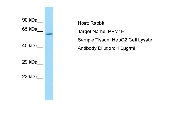 PPM1H Antibody -  This image was taken for the unconjugated form of this product. Other forms have not been tested.
