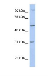PPM1J Antibody - 721_B cell lysate. Antibody concentration: 1.0 ug/ml. Gel concentration: 12%.  This image was taken for the unconjugated form of this product. Other forms have not been tested.