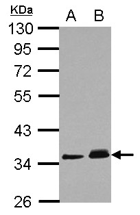 PPM1J Antibody - Sample (30 ug of whole cell lysate) A: A431 B: HeLa 10% SDS PAGE PPM1J antibody diluted at 1:1000