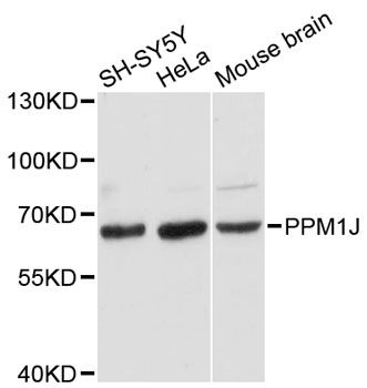 PPM1J Antibody - Western blot analysis of extracts of various cell lines, using PPM1J antibody at 1:3000 dilution. The secondary antibody used was an HRP Goat Anti-Rabbit IgG (H+L) at 1:10000 dilution. Lysates were loaded 25ug per lane and 3% nonfat dry milk in TBST was used for blocking. An ECL Kit was used for detection and the exposure time was 90s.