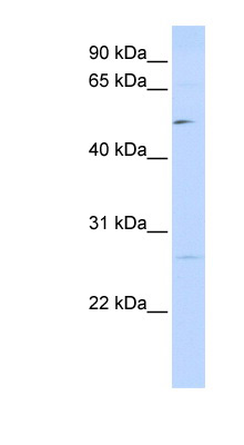 PPM1M antibody LS-C102454 Western blot of 293T cell lysate.  This image was taken for the unconjugated form of this product. Other forms have not been tested.