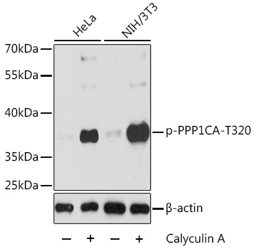 PPP1CA / PP1-Alpha Antibody - Western blot analysis of extracts of various cell lines, using Phospho-PPP1CA-T320 antibody at 1:2000 dilution or PPP1CA antibody. NIH/3T3 cells were treated by Calyculin A (100 nM) at 37℃ for 30 minutes after serum-starvation overnight. The secondary antibody used was an HRP Goat Anti-Rabbit IgG (H+L) at 1:10000 dilution. Lysates were loaded 25ug per lane and 3% nonfat dry milk in TBST was used for blocking. Blocking buffer: 3% BSA.An ECL Kit was used for detection and the exposure time was 30s.