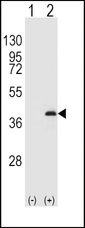 Western blot of PPP1CB (arrow) using rabbit polyclonal PPP1CB Antibody (K301). 293 cell lysates (2 ug/lane) either nontransfected (Lane 1) or transiently transfected (Lane 2) with the PPP1CB gene.