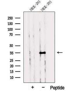 PPP1CC / PP1 Gamma Antibody - Western blot analysis of extracts of HEK293 cells using PPP1CC antibody. The lane on the left was treated with blocking peptide.