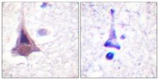 PPP1R12A / MYPT1 Antibody - Immunohistochemistry analysis of paraffin-embedded human brain tissue, using MYPT1 Antibody. The picture on the right is blocked with the synthesized peptide.