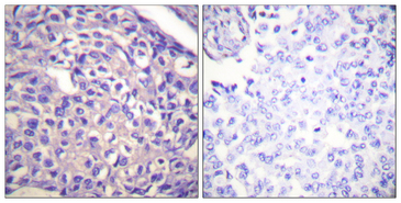 Immunohistochemistry analysis of paraffin-embedded human breast carcinoma tissue, using MYPT1 Antibody. The picture on the right is blocked with the synthesized peptide.
