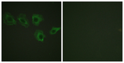 Immunofluorescence analysis of A549 cells, using MYPT1 (Phospho-Thr696) Antibody. The picture on the right is blocked with the phospho peptide.