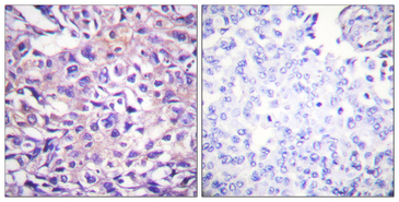Immunohistochemistry analysis of paraffin-embedded human breast carcinoma, using MYPT1 (Phospho-Thr696) Antibody. The picture on the right is blocked with the phospho peptide.
