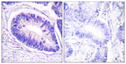 Immunohistochemistry analysis of paraffin-embedded human colon carcinoma, using MYPT1 (Phospho-Thr853) Antibody. The picture on the right is blocked with the phospho peptide.