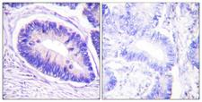 PPP1R12A / MYPT1 Antibody - Immunohistochemistry analysis of paraffin-embedded human colon carcinoma, using MYPT1 (Phospho-Thr853) Antibody. The picture on the right is blocked with the phospho peptide.