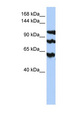 PPP1R13B antibody Western blot of HepG2 cell lysate. This image was taken for the unconjugated form of this product. Other forms have not been tested.
