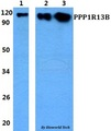 Western blot of PPP1R13B antibody at 1:500 dilution. Lane 1: HEK293T whole cell lysate. Lane 2: Raw264.7 whole cell lysate. Lane 3: PC12 whole cell lysate.