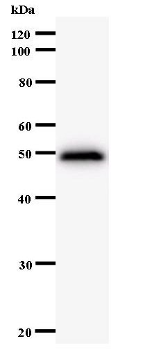 Western blot of immunized recombinant protein using PPP1R13L antibody.