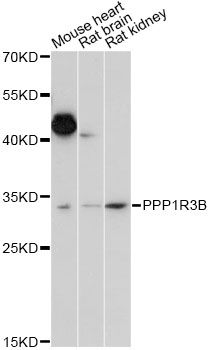 PPP1R3B Antibody - Western blot analysis of extracts of various cell lines, using PPP1R3B antibody at 1:1000 dilution. The secondary antibody used was an HRP Goat Anti-Rabbit IgG (H+L) at 1:10000 dilution. Lysates were loaded 25ug per lane and 3% nonfat dry milk in TBST was used for blocking. An ECL Kit was used for detection and the exposure time was 15s.