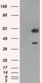 HEK293T cells were transfected with the pCMV6-ENTRY control (Left lane) or pCMV6-ENTRY PPP1R7 (Right lane) cDNA for 48 hrs and lysed. Equivalent amounts of cell lysates (5 ug per lane) were separated by SDS-PAGE and immunoblotted with anti-PPP1R7.