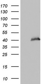 HEK293T cells were transfected with the pCMV6-ENTRY control (Left lane) or pCMV6-ENTRY PPP1R8 (Right lane) cDNA for 48 hrs and lysed. Equivalent amounts of cell lysates (5 ug per lane) were separated by SDS-PAGE and immunoblotted with anti-PPP1R8.