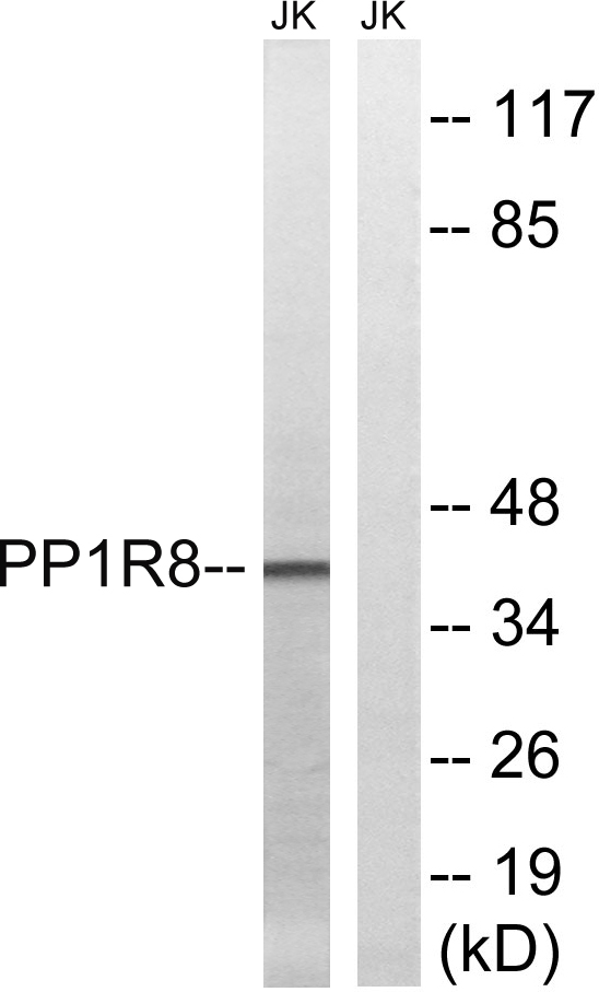 Western blot analysis of lysates from Jurkat cells, using PPP1R8 Antibody. The lane on the right is blocked with the synthesized peptide.