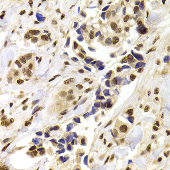 Immunohistochemistry of paraffin-embedded Human mammary cancer tissue.