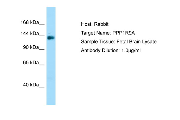 PPP1R9A / Neurabin 1 Antibody -  This image was taken for the unconjugated form of this product. Other forms have not been tested.