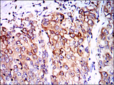 IHC of paraffin-embedded lung cancer tissues using PPP2R4 mouse monoclonal antibody with DAB staining.