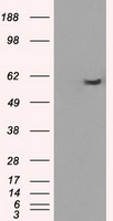 HEK293T cells were transfected with the pCMV6-ENTRY control (Left lane) or pCMV6-ENTRY PPP5C (Right lane) cDNA for 48 hrs and lysed. Equivalent amounts of cell lysates (5 ug per lane) were separated by SDS-PAGE and immunoblotted with anti-PPP5C.