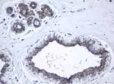PPT1 / CLN1 Antibody - IHC of paraffin-embedded Human breast tissue using anti-PPT1 mouse monoclonal antibody.