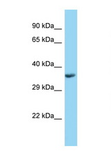 PPT1 antibody Western blot of Fetal Kidney lysate. Antibody concentration 1 ug/ml.  This image was taken for the unconjugated form of this product. Other forms have not been tested.