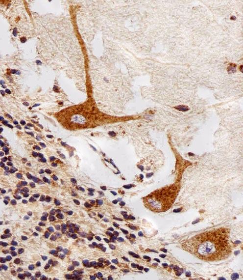 PPT1 / CLN1 Antibody - Immunohistochemical of paraffin-embedded H. cerebellum section using PPT1 Antibody. Antibody was diluted at 1:25 dilution. A peroxidase-conjugated goat anti-rabbit IgG at 1:400 dilution was used as the secondary antibody, followed by DAB staining.