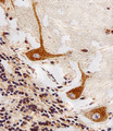 Immunohistochemical of paraffin-embedded H. cerebellum section using PPT1 Antibody. Antibody was diluted at 1:25 dilution. A peroxidase-conjugated goat anti-rabbit IgG at 1:400 dilution was used as the secondary antibody, followed by DAB staining.