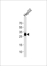 Western blot of lysate from HepG2 cell line using PPT1 Antibody. Antibody was diluted at 1:1000 at each lane. A goat anti-mouse IgG H&L (HRP) at 1:3000 dilution was used as the secondary antibody. Lysate at 35 ug per lane.