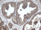 IHC of paraffin-embedded Carcinoma of Human prostate tissue using anti-PPT1 mouse monoclonal antibody.