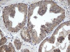 PPT1 / CLN1 Antibody - IHC of paraffin-embedded Carcinoma of Human prostate tissue using anti-PPT1 mouse monoclonal antibody.