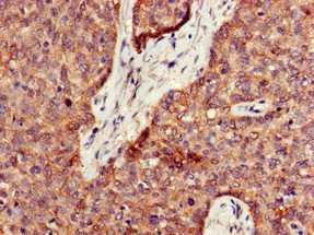 PPT1 / CLN1 Antibody - Immunohistochemistry of paraffin-embedded human ovarian cancer at dilution of 1:100