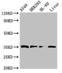 PPT1 / CLN1 Antibody - Western Blot Positive WB detected in:A549 whole cell lysate,HEK293 whole cell lysate,HL-60 whole cell lysate,Rat liver tissue All Lanes:PPT1 antibody at 3.5µg/ml Secondary Goat polyclonal to rabbit IgG at 1/50000 dilution Predicted band size: 35,24 KDa Observed band size: 35 KDa
