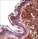 PPT2 Antibody - PPT2 Antibody immunohistochemistry of formalin-fixed and paraffin-embedded human skin tissue followed by peroxidase-conjugated secondary antibody and DAB staining.