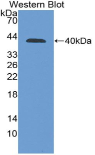 Western blot of recombinant PPY / Pancreatic Polypeptide.