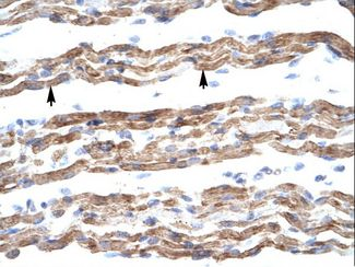 PQBP1 Antibody - PQBP1 antibody ARP31454_T100-PQBP1 (polyglutamine binding protein 1) Antibody was used in IHC to stain formalin-fixed, paraffin-embedded human muscle.  This image was taken for the unconjugated form of this product. Other forms have not been tested.