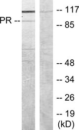 Western blot analysis of lysates from COS7 cells, treated with EGF, using Progesterone Receptor Antibody. The lane on the right is blocked with the synthesized peptide.